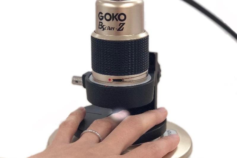 体表面から毛細血管観察 GOKO映像機器、マイクロスコープ拡販