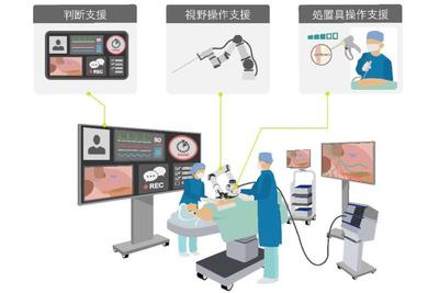 オリンパス、AIで内視鏡手術支援 安全・効率性高める