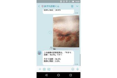 大植病院、在宅の床ずれ対策アプリ開発 AIが画像分析、LINEで判定返信